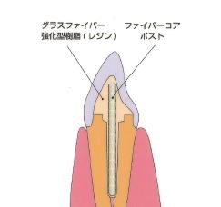 ファイバーコア断面図